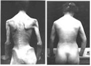 Atopitchesky la dermatite de lauricule